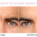 Gainesville, FL Botox® Treatments
