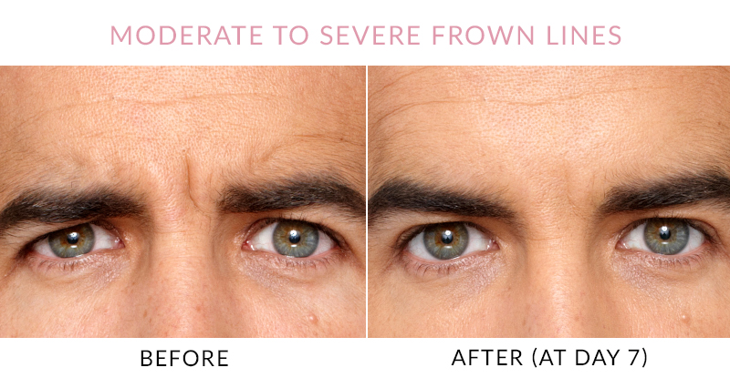 Botox – Before and After – Accent Aesthetics