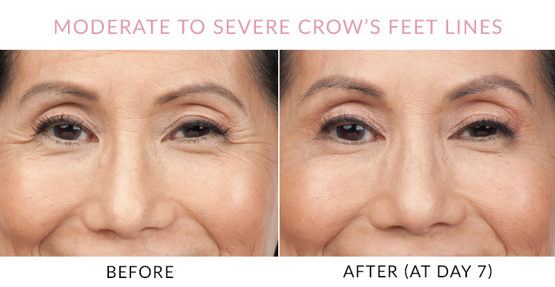 BOTOX Gainesville Florida – moderate to severe crows feet