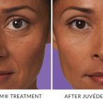 JUVÉDERM® Treatments in Gainesville, FL