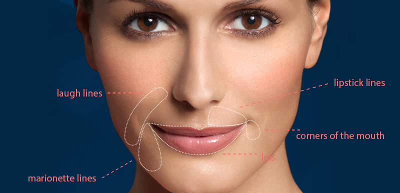Restylane Silk for Subtle Lip Enhancement and the Smoothing of Wrinkles and Lines around the Mouth in Gainesville, Florida