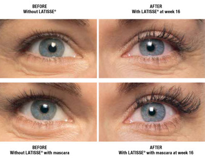 Patients using Latisse enjoys full lashes within weeks.