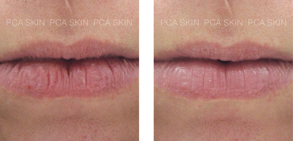 Buy Peptide Lip Therapy by PCA Skin in Gainesville, FL