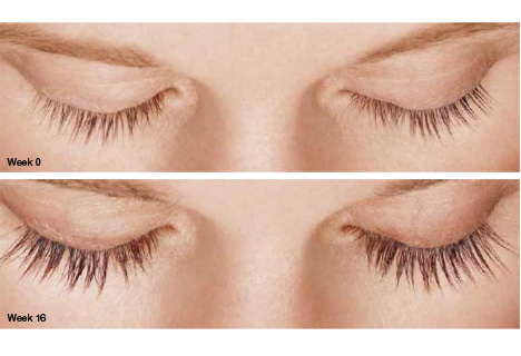This an actual LATISSE® patient without mascara—lashes not retouched.