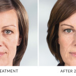 Correct shallow to deep facial wrinkles and folds in Gainesville, FL