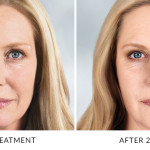 Sculptra Aesthetic is a new type of facial injectable made from poly-L-lactic acid, which helps to replace lost collagen.