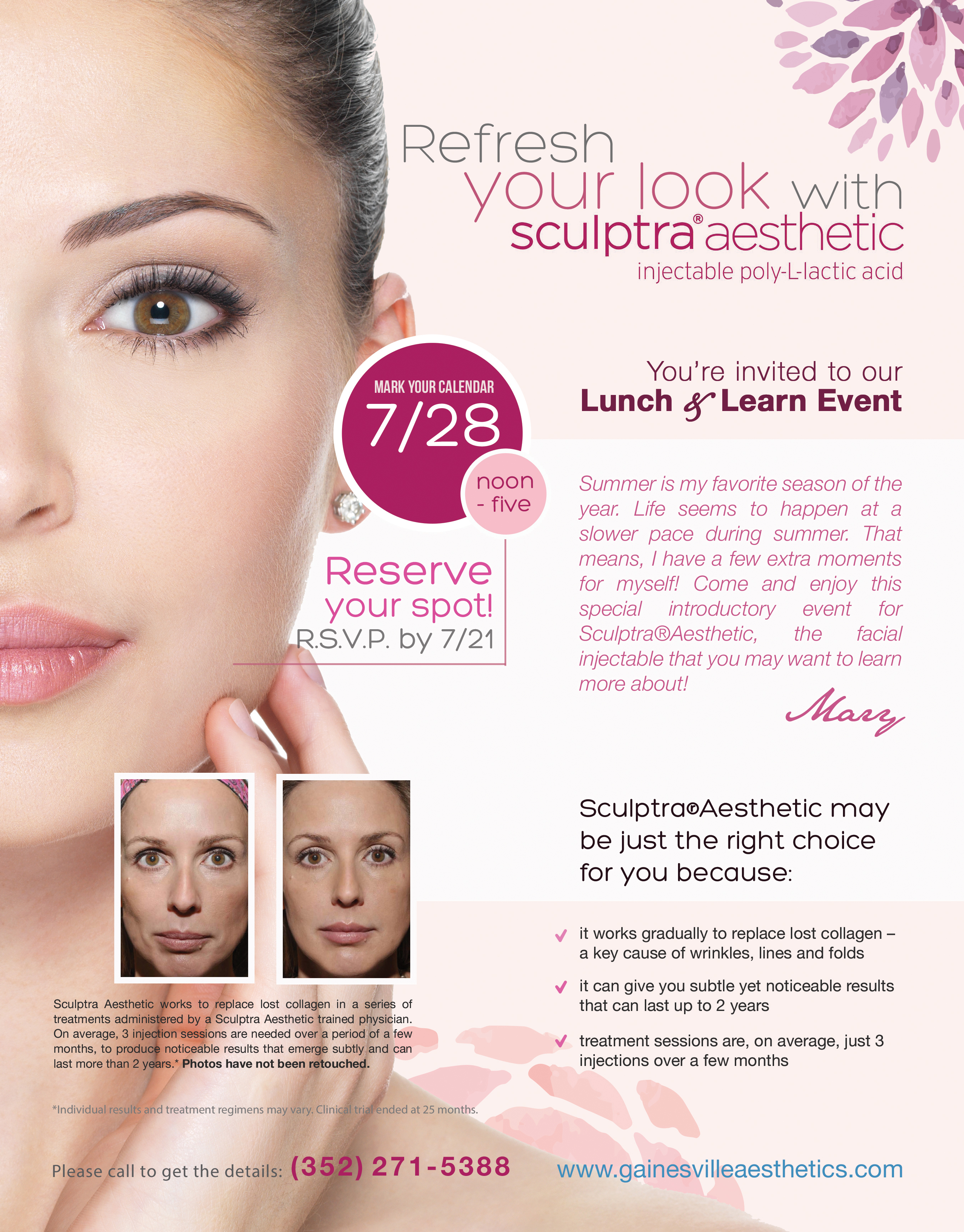 Sculptra®Aesthetic Lunch & Learn Event in Gainesville, FL