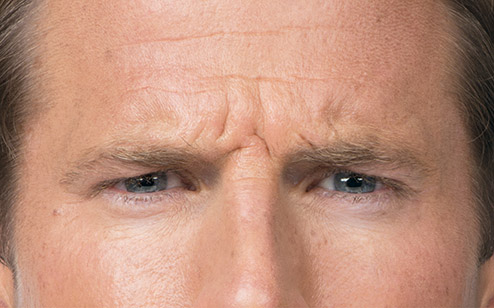 Before using Botox for Men / Gainesville, Florida