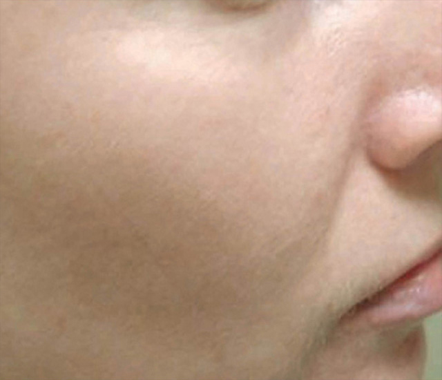 Skin Revitalization After Photo