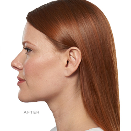 KYBELLA® Treatment - After