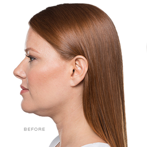 KYBELLA® Treatment - Before