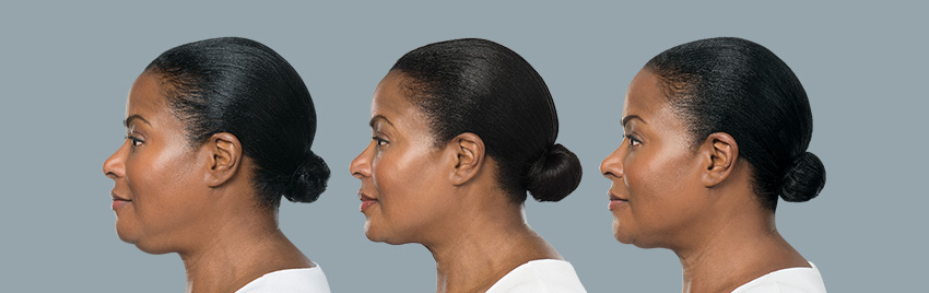 The First & Only Injectable Double Chin Treatment | KYBELLA® in Gainesville, FL