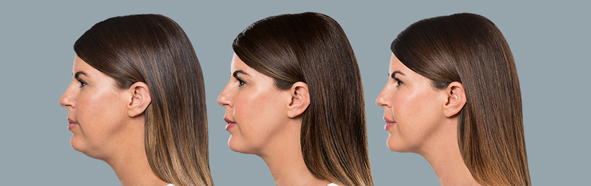 The First & Only Injectable Double Chin Treatment | KYBELLA®