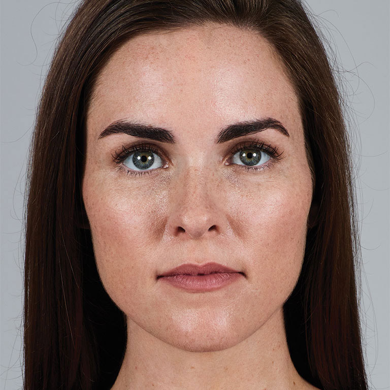 Pump Up the Volume with Juvederm Volbella for Lips - Picture Before