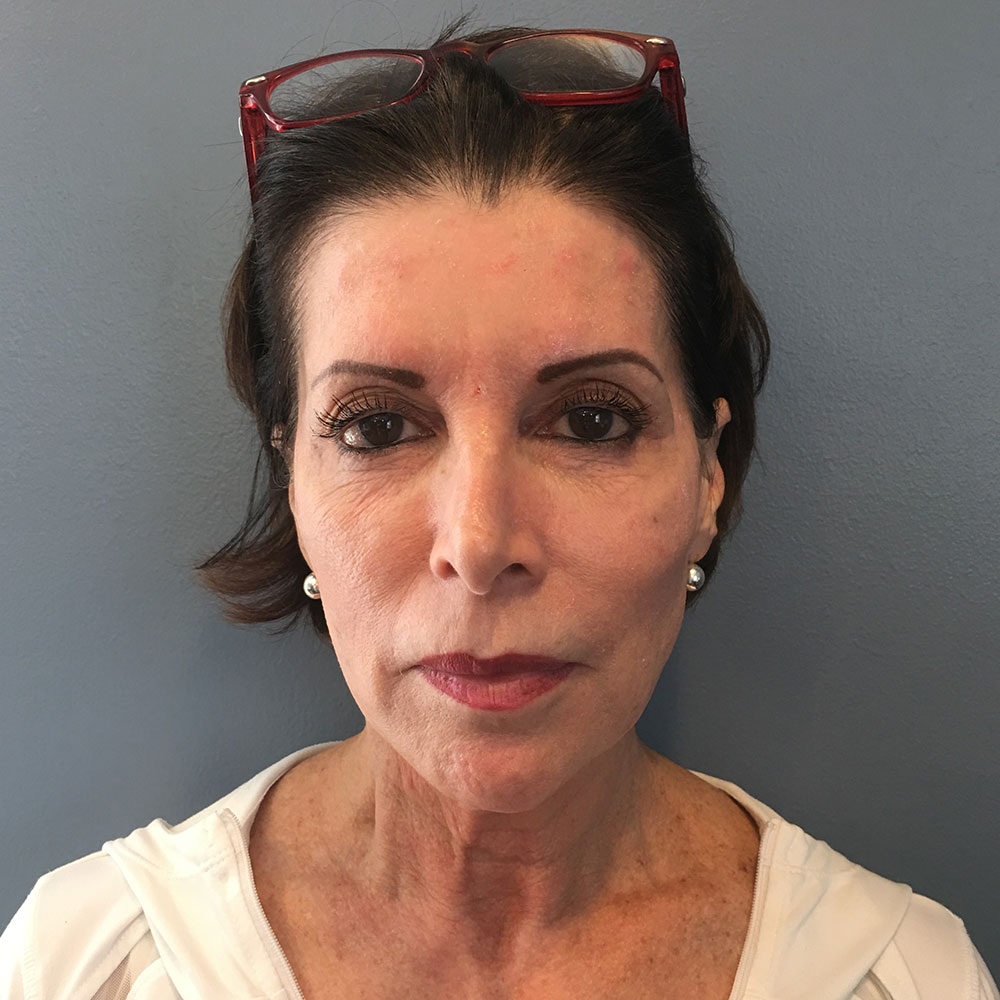 Vampire Facelift® now in Gainesville, FL - Before Photo