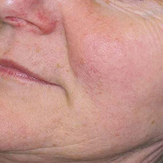 After picture of laser treatments for rosacea Gainesville, Florida.