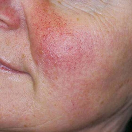Before picture of laser treatments for rosacea Gainesville, Florida.