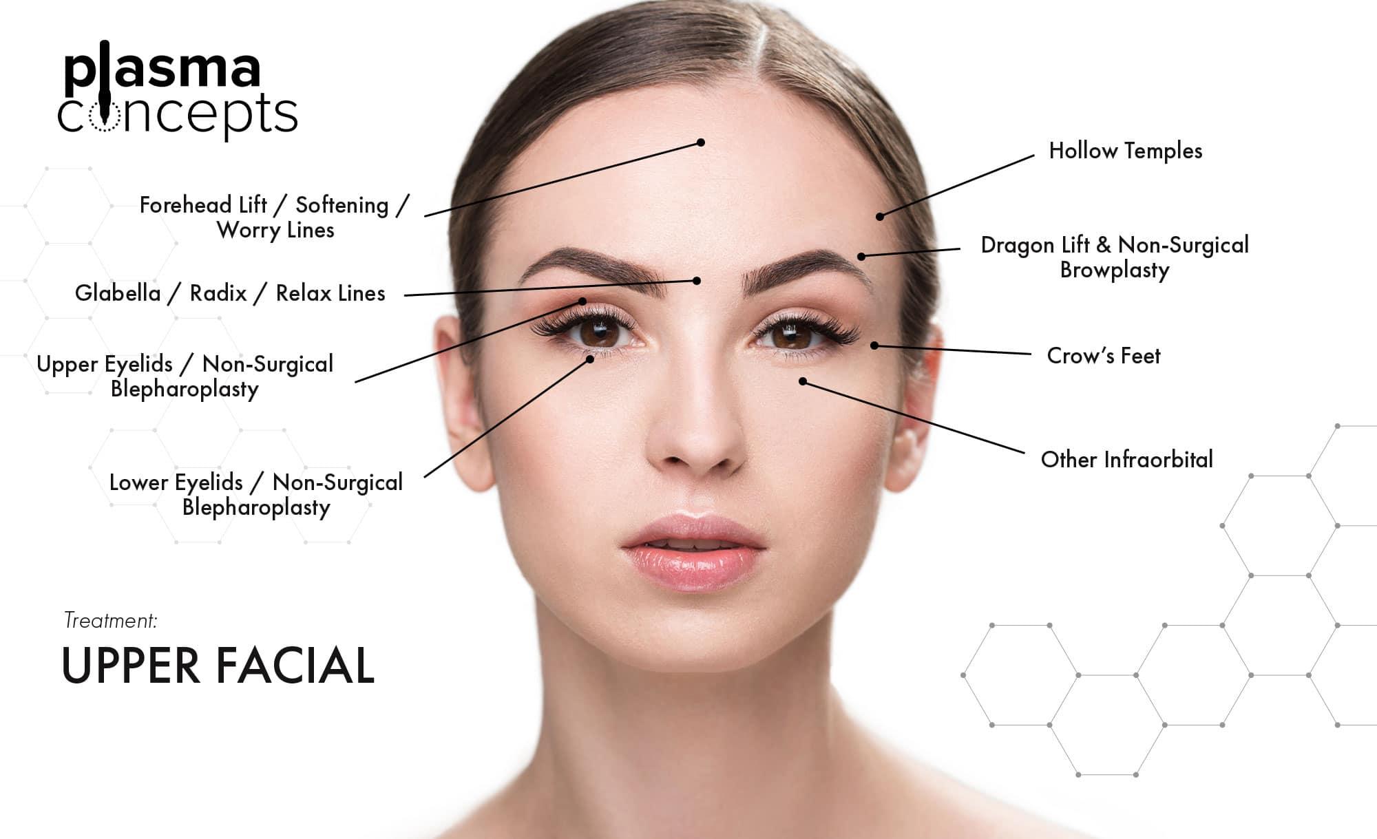 Gainesville Upper Facial Treatment Guide The Plasma Concepts Pen